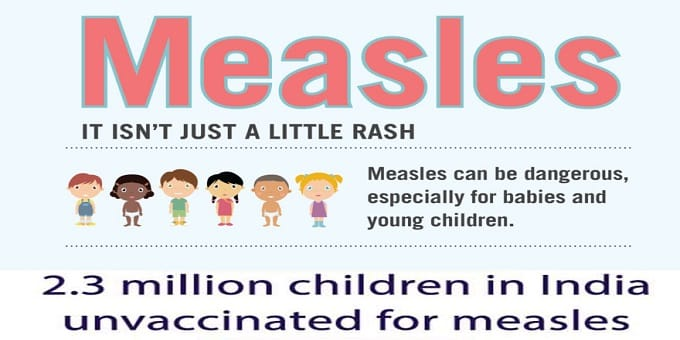 unvaccinated for measles